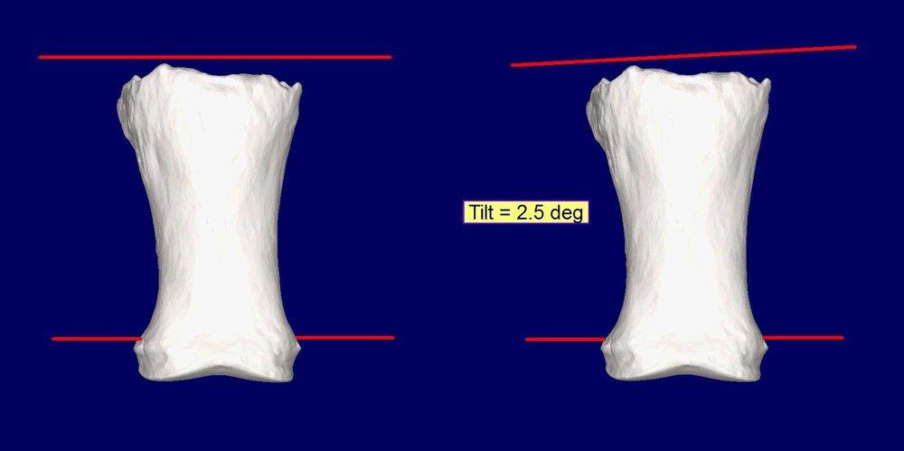 P1 Tilt Combo
